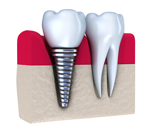 sideview of a dental implant